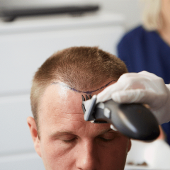 Turkey: The Country To Get A Hair Transplant